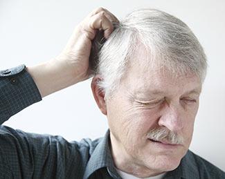 Dandruff Causes, Dandruff Treatments