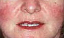 Signs Of Rosacea, Rosacea Symptoms