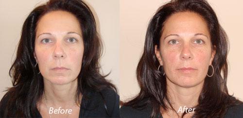 California Botox Treatment