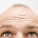 Male Pattern Hair Loss, Female Hair Loss