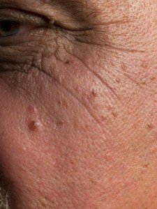 Moles And Skin Cancer