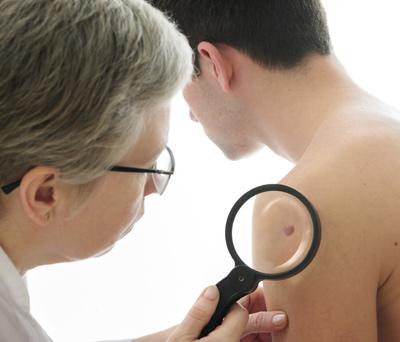 Agent Orange And Skin Cancer