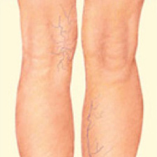Red Bluff Sclerotherapy