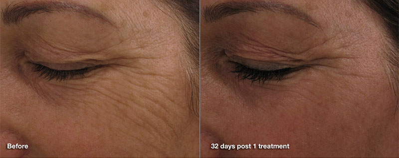 Pearl Fractional for anti-aging